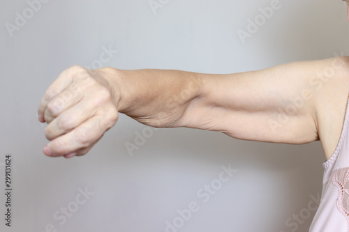 An excess loose skin on an arm of a senior elderly woman after extreme weight lo Canvas-taulu