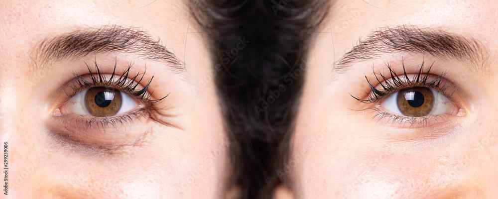 Fototapeta Eye wrinkles, aging sign, rejuvenation close up