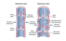 Dynamics Of Venous Circulation...
