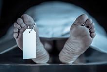Cadaver On Autopsy Table At Mo...