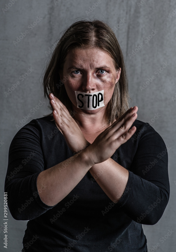 Fototapety, obrazy: Beaten up woman victim of domestic violence and abuse with covered her mouth shows stop gesture