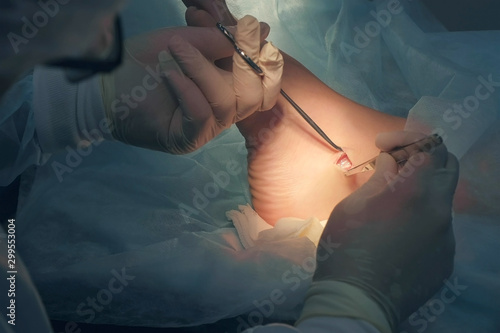 Cuadros en Lienzo  Surgeon making surgery of removal ankle hygroma in hospital in operating room, hands closeup
