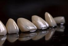 Porcelain Veneers Close Up. M...
