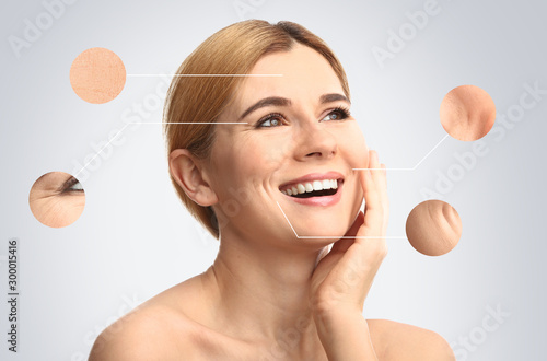 Obraz Portrait of beautiful woman with skin problem on light background. Process of aging - fototapety do salonu