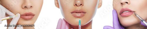 Set of sensual female lips, procedure lip augmentation Wallpaper Mural