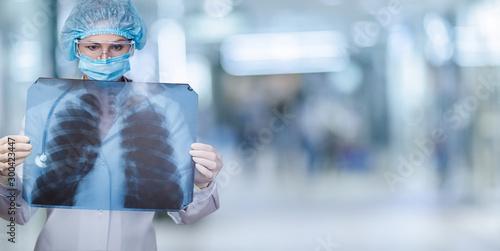 The concept of examination and treatment of the lungs . Tapéta, Fotótapéta