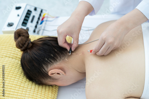 Closeup of hand performing acupuncture therapy or doctor inserts needles into a person's neck skin to reduce neck pain, acupuncture Canvas Print