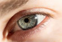 Close Up Of Human Eye With Sun Spot
