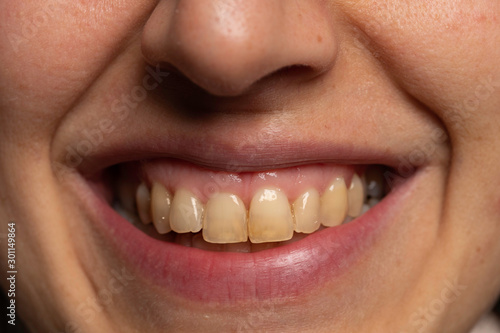 Obraz Person with yellow teeth close up - fototapety do salonu