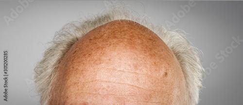 Photo old bald head  detail