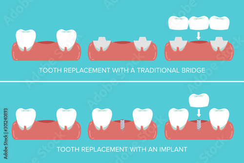Dental implants versus fixed bridges Wallpaper Mural