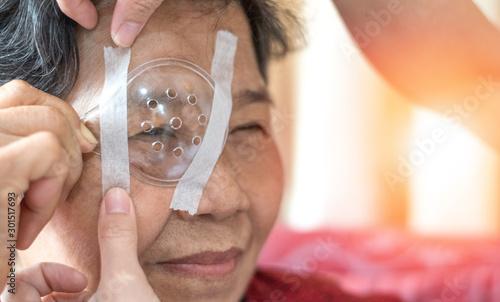 Cuadros en Lienzo  Cataract treatment after surgery by caregiver concept