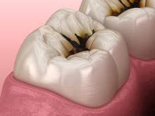 Molar Teeth Damaged By Caries....