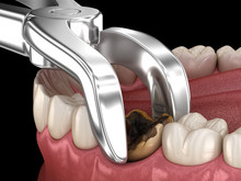 Extraction Of Molar Tooth Damaged By Caries. Medically Accurate Tooth 3D Illustration.
