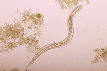 Strongyloides Stercoralis Or Threadworm In Human Stool, Analyze By Microscope, Original Magnification 400x