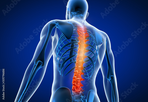 3d rendered medically accurate illustration of a man having a painful back Canvas Print