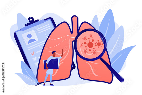 Vászonkép Huge magnifier showing cancer in the lungs and doctor with document folder