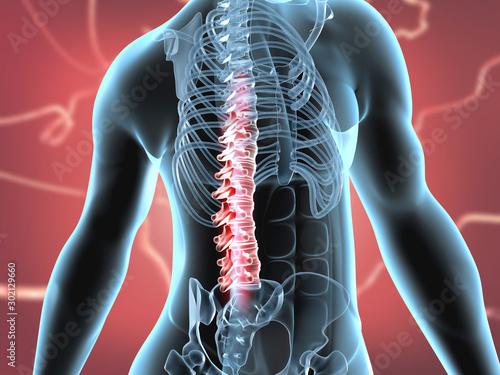 Fotomural  Spinal cord injury concept. 3d illustration.
