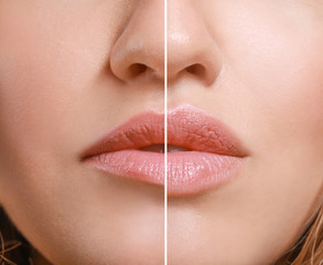 Young woman before and after lip enhancement, closeup