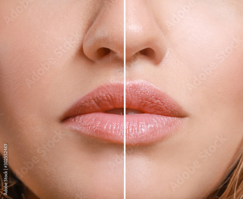 Young woman before and after lip enhancement, closeup Poster Mural XXL