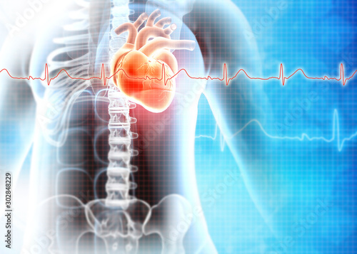 Fotomural  Human heart attack. Heart Disease. 3d illustration