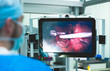 Medical robot, surgeon. Operating room modern technology, operation with a robot. Robotic surgery. The doctor performing the operation on a person, human organs are displayed on the monitor screen
