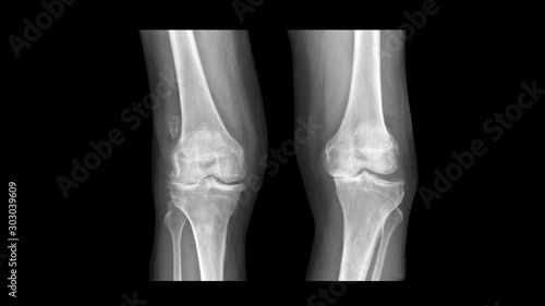 Film X ray knee radiograph show degenerative osteoarthritis disease (OA knee disorder) with Windswept deformity (Varus deformity on right knee and Valgus on left side) Lerretsbilde