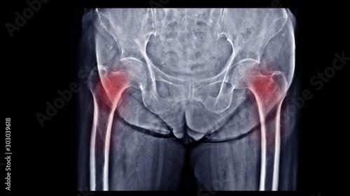 Fotomural Film X-ray hip show osteoporosis bone
