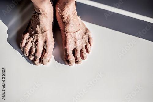 Fotomural  The image of the feet of an elderly old person that is worn down