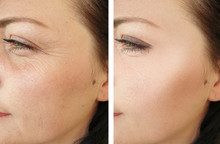 Woman Face Wrinkles Before And...