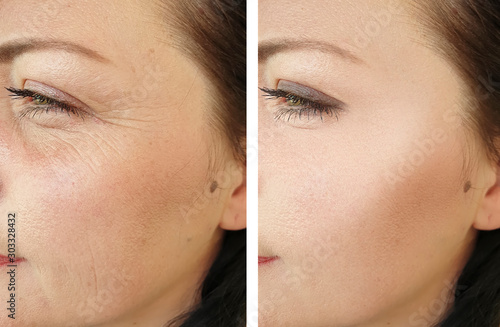 woman face wrinkles before and after treatment Wallpaper Mural