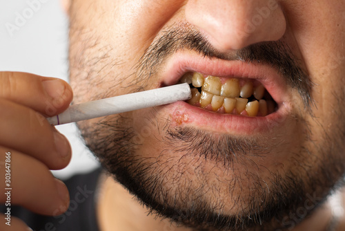Fototapeta A man with bad teeth and herpes on his lip holds a cigarette near his mouth, whi