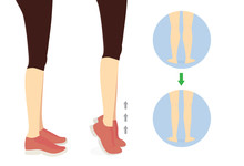 Workout Diagram About Calves Reduction With Toe Stand Exercise. Illustration About Slim Leg With Workout.