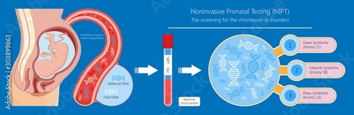 Photo Noninvasive prenatal testing NIPT screening genetic disorders bloodstream cfDNA
