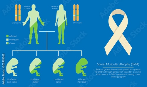 Spinal muscular atrophy SMA genetic disorder Wallpaper Mural
