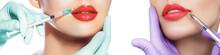 Set Sensual Lip With Syringe. ...