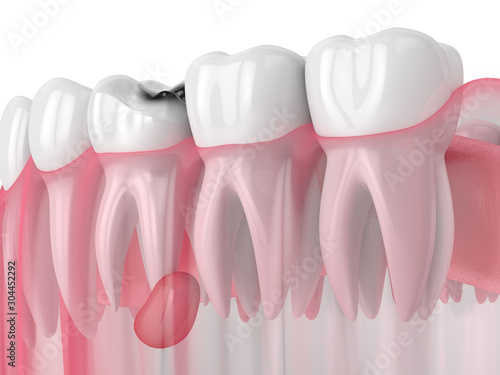 3d render of jaw with tooth cavity and cyst Wallpaper Mural