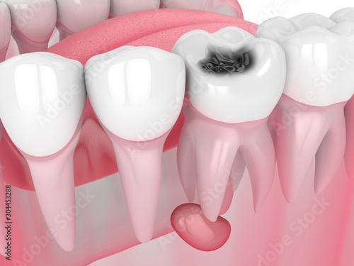 Fotografija 3d render of jaw with tooth cavity and cyst