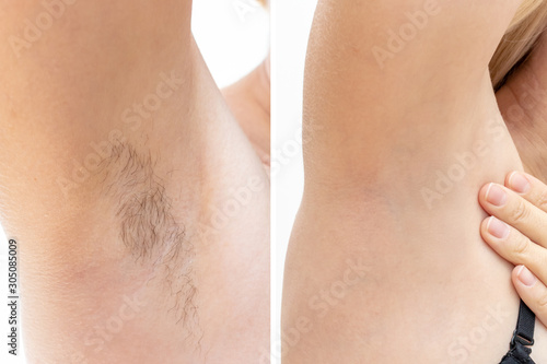 Photo Woman underarms, armpit before and after depilation, laser waxing and sugaring