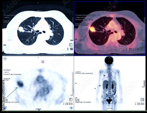 Fotografía  PET CT Scan fusion image