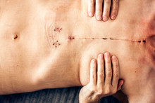 Scar From Open Heart Surgery On The Female Body, Where The Sternum Was Cut In Two, And The Rib Cage Sprung. Image Taken 30 Days (1 Month) Following Surgery.