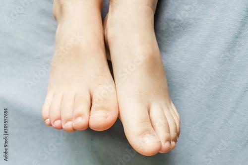 Fotomural Children's bare feet. Child's bare feet on a gray bed
