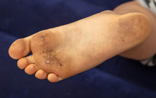Dirty Feet On The Boy's Legs