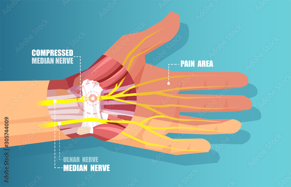 Fototapeta vector of a carpal tunnel syndrome with median nerve compression