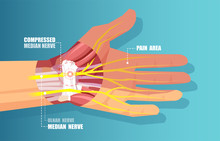 Vector Of A Carpal Tunnel Syndrome With Median Nerve Compression