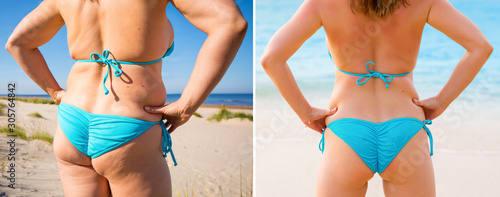 Woman in bikini from back before and after weight loss Fototapeta