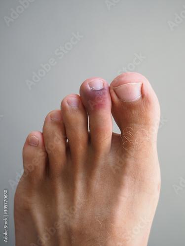 A bruise on the toe. Injury, arthritis, rheumatism, disease concept.. Wall mural