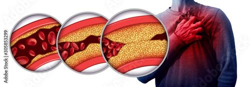 Heart Attack Disease Canvas Print