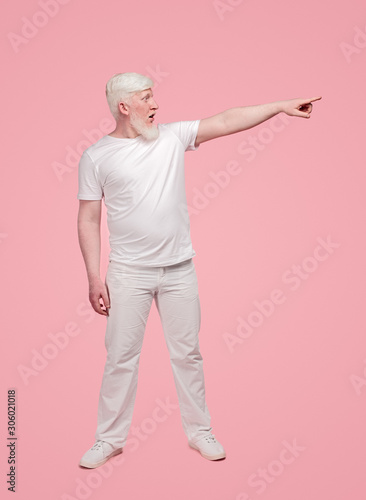 Amazed albino male pointing to side Fototapet