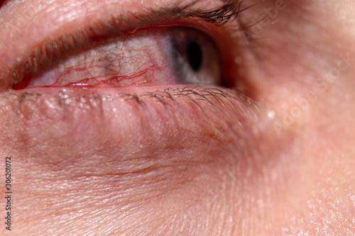 Fotografie, Obraz  Red capillaries of an inflamed eye near